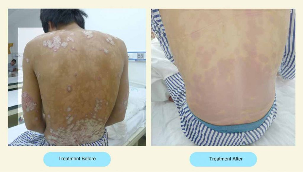 Psoriasis Treatment image