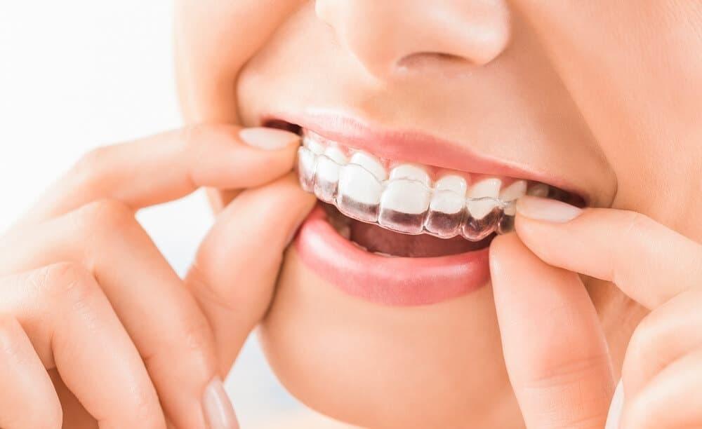 Woman wearing clear teeth aligners