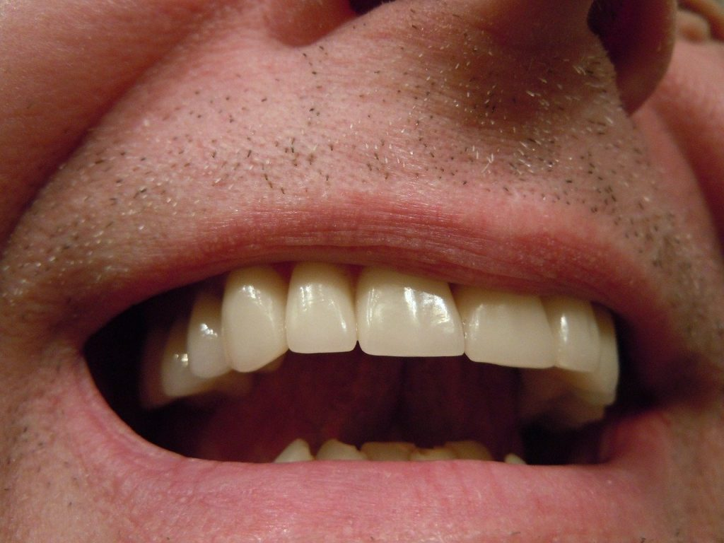 Man with dental crowns